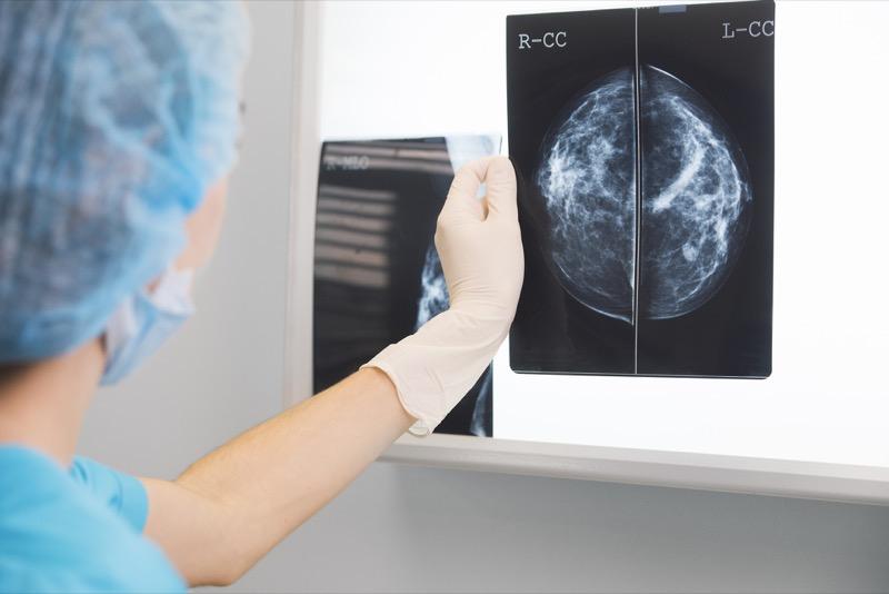 raio-x mamografia